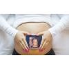 Сурогатне материнство - донорство яйцеклітин